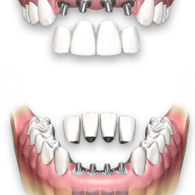 multiple-tooth-dental-implants